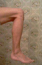 Стеноз правой ноги. Плечо. 1